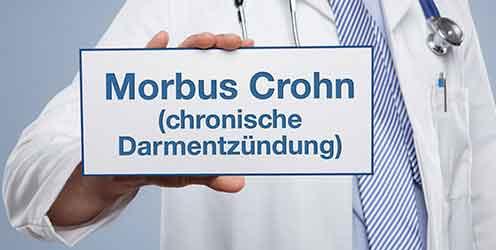 Morbus Crohn – 10 Fakten